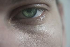 depressed eye